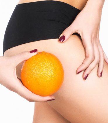 5 consigli dietetici per contrastare la cellulite